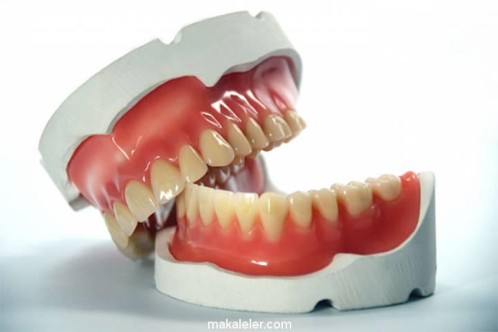 Diş Protezi ve Diş Protez Çeşitleri
