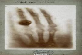 Röntgenyum Nedir, Özellikleri Nelerdir?