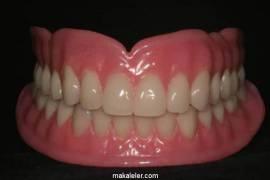Tam Diş Protezi Nedir, Hangi Hastalara Uygulanır?
